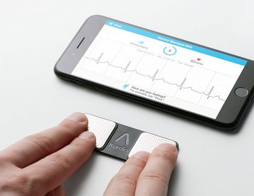 The Kardia Portable EKG Puts Heart Health Data at Your Fingertips
